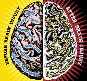 Brain injury and concussion photo